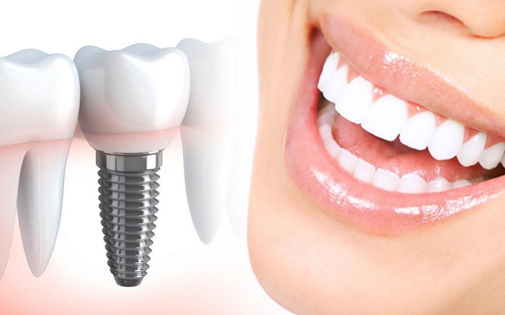 Особенности проведения имплантации зубов женщинам