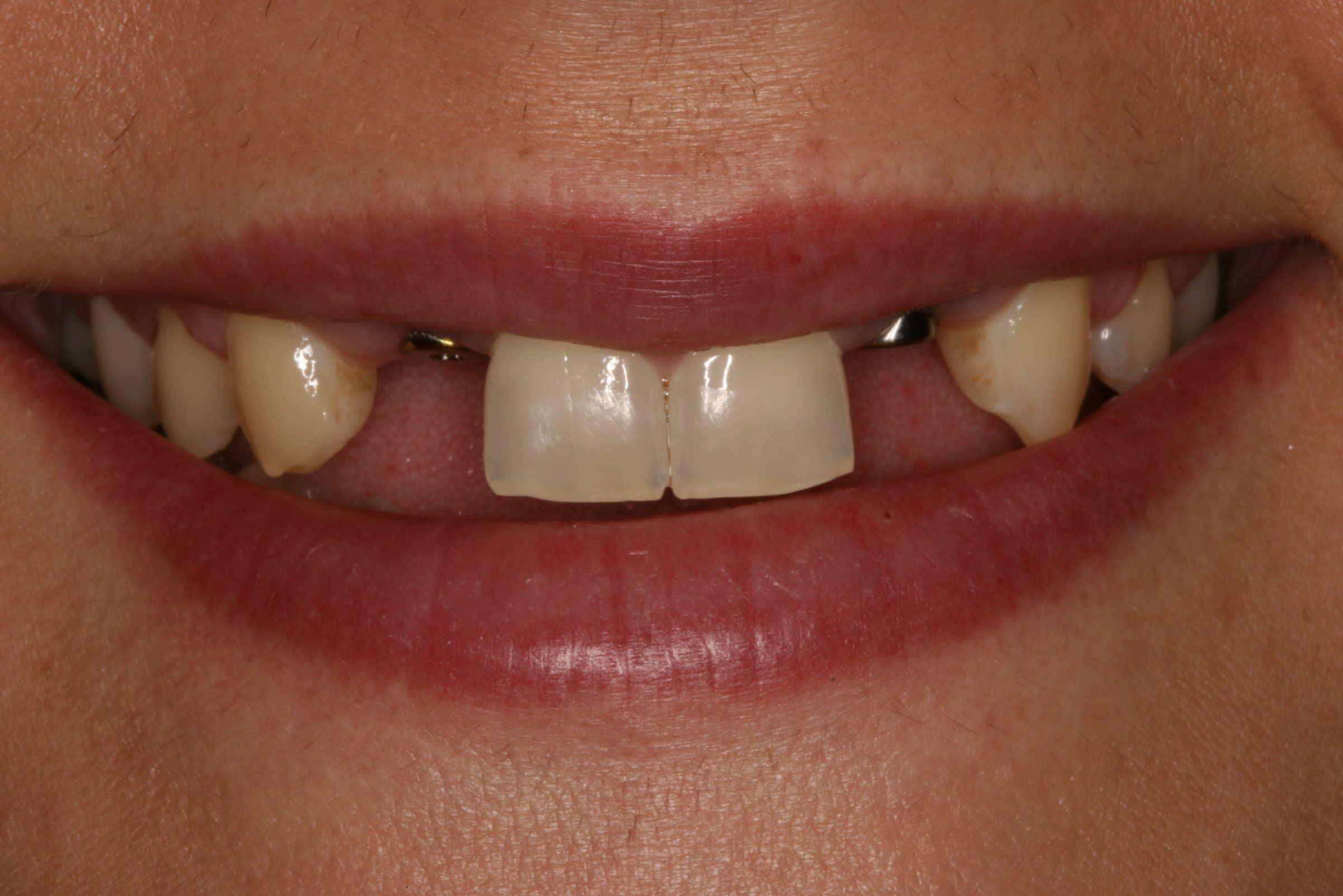 Импланты передних зубов