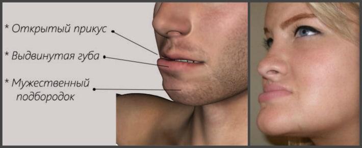 Макрогнатия нижней челюсти