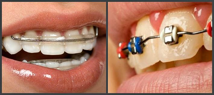 Виды систем выравнивания зубного ряда
