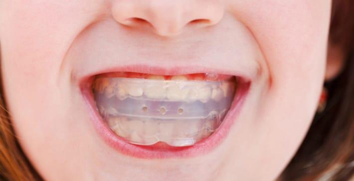 Ортодонтический трейнер