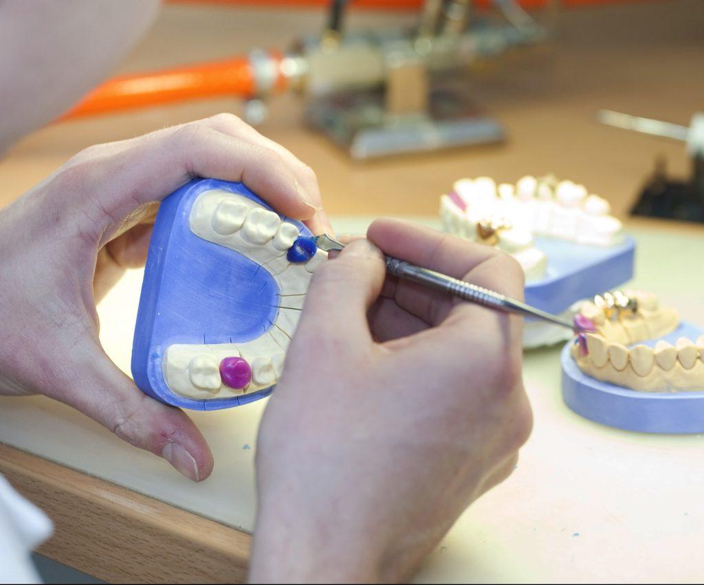 Современные методы протезирования зубов