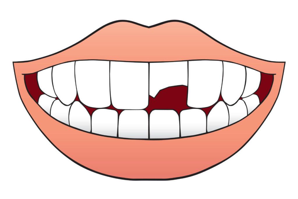 """Что обозначает сон """"Выбитые зубы"""""""