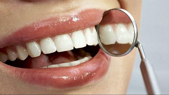 Как понять кариес на зубах, налет или камень?