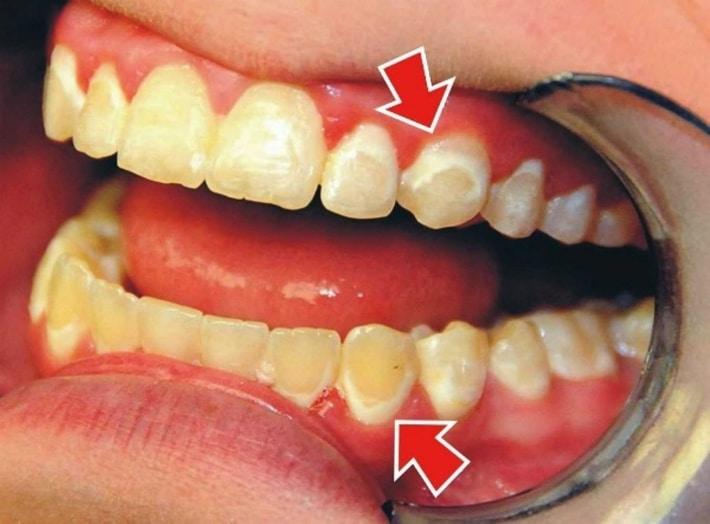 Постепенное разрушение твердых тканей зуба
