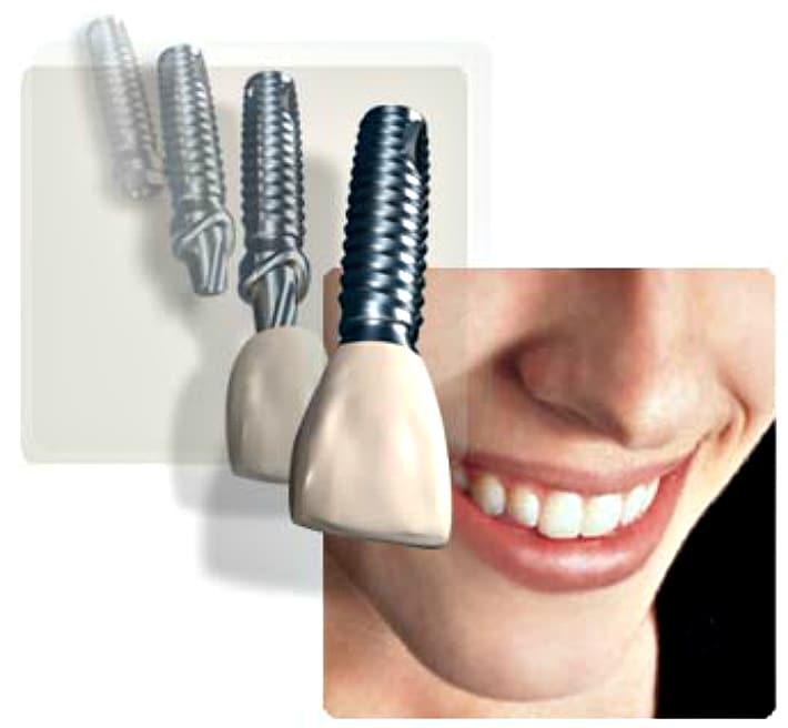 Как правильно имплант, имплантант или имплантат