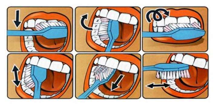 Техника чистки зубов