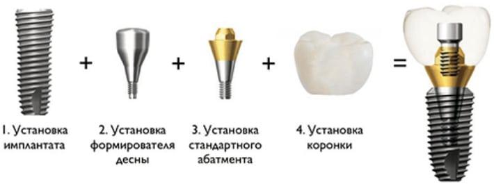 Классическая имплантация