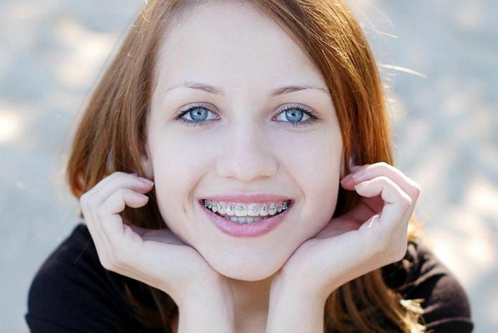 Как работают брекеты для зубов: все что нужно знать