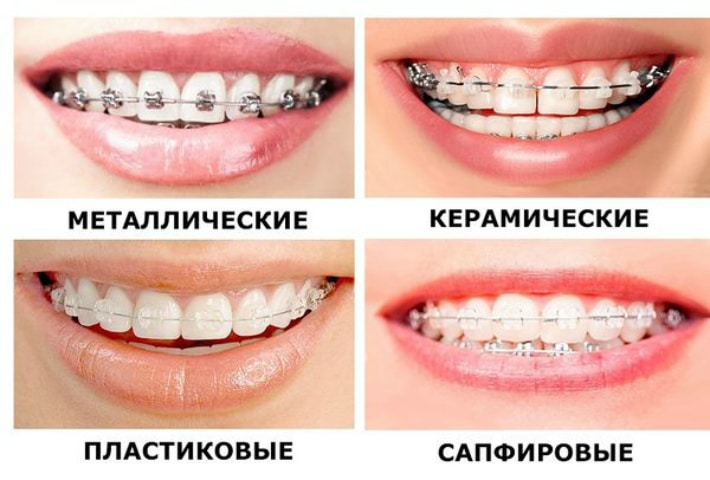 Разновидности брекетов по используемым материалам.
