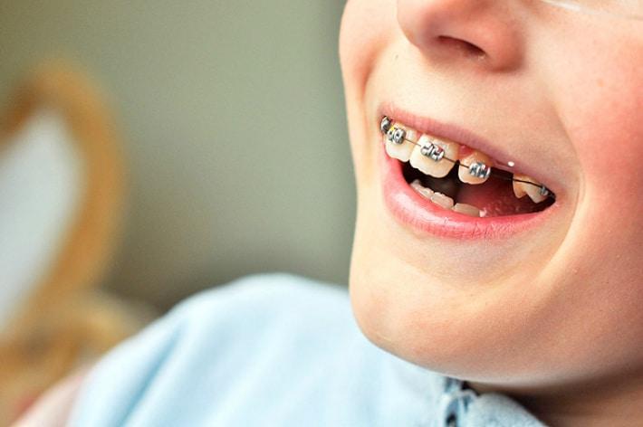 Исправление положения зубов