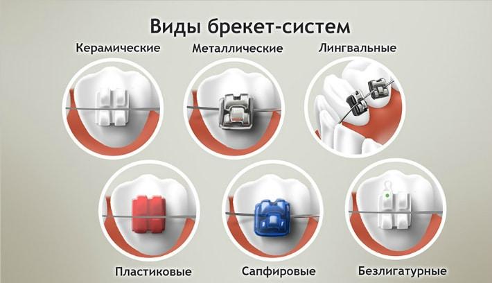 Основные виды брекет-систем