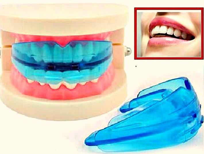 Достоинство применения зубных кап для отбеливания