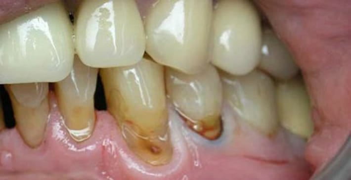 Что такое кариес корня зуба