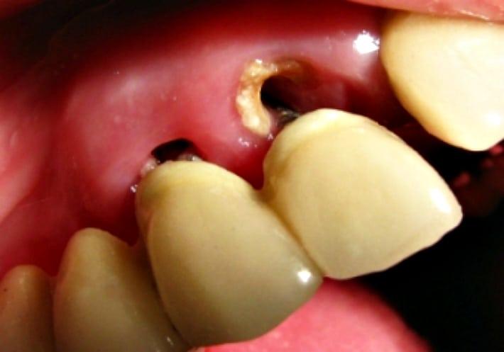 Развитие кариеса корня зуба