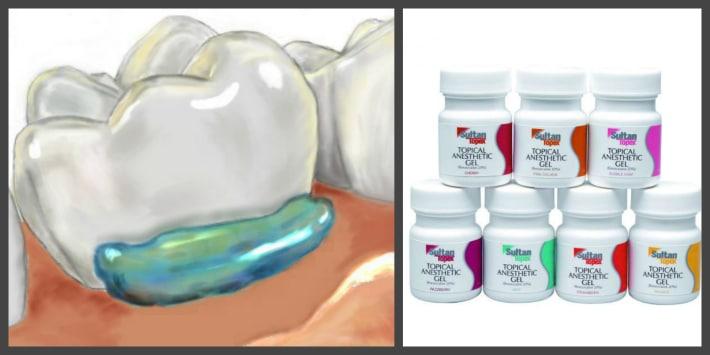 Аппликационная анестезия зубов