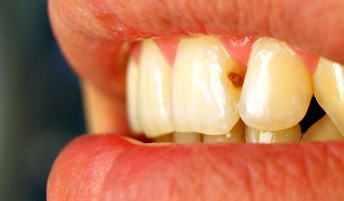 Кариес на стыке зубов