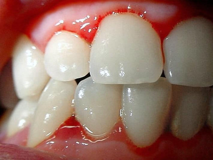 Симптомы кариеса передних зубов