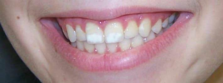 Пятна с матовой структурой на зубах