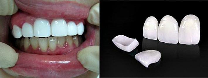 Виниры передних зубов