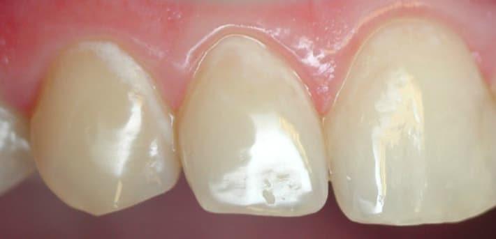 Начальный кариес зубов