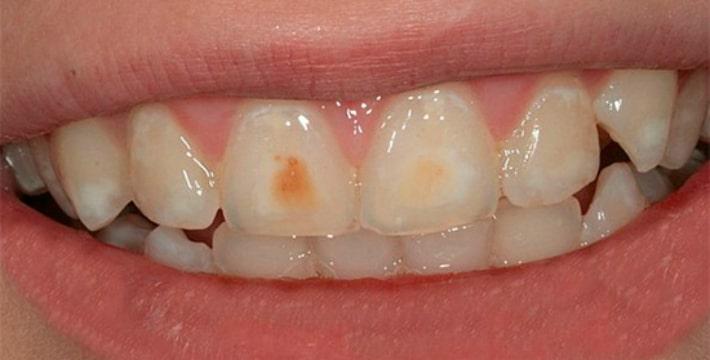 Тёмные пятна на эмали зубов