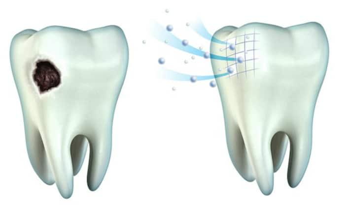 Восстановление минерального состава зубов