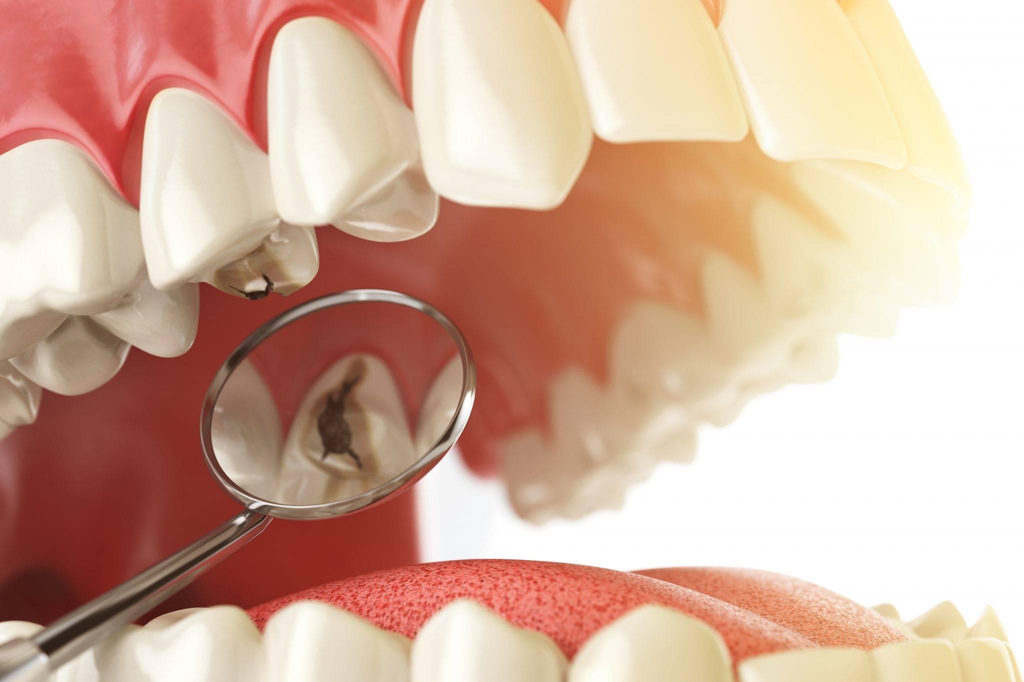 Кариесный зуб