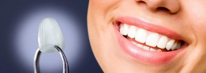 Люминиры на зубы