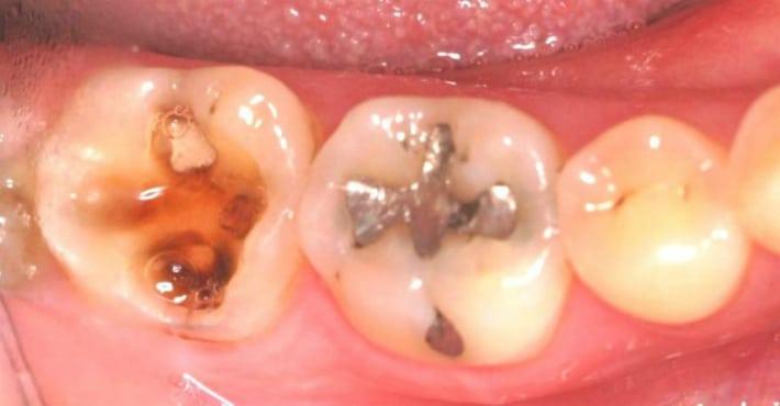 Инфекция как причина пульпита