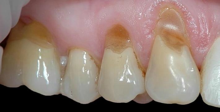 Способы лечения клиновидного дефекта зубов