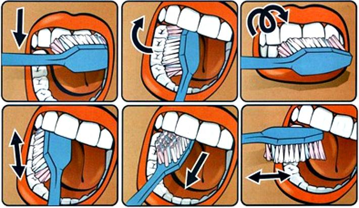 Схема правильной чистки зубов