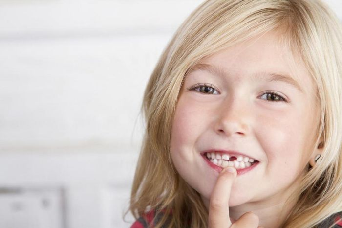 Что делать когда выпал молочный зуб?