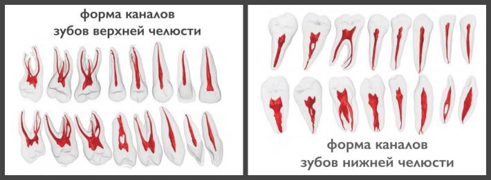 Как определить сколько каналов у зуба