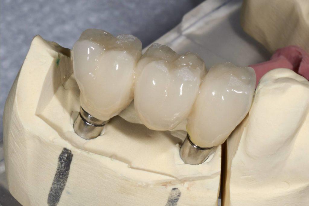 Комбинированная имплантация зубов