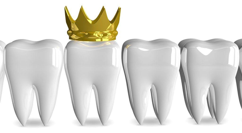 Аллергия на зубные коронки