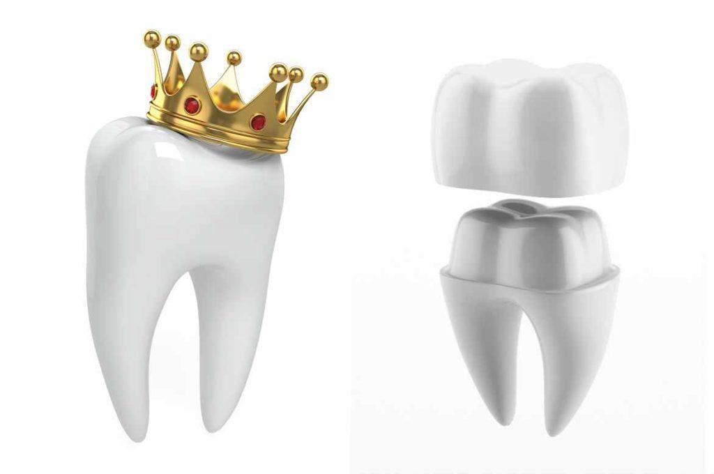 Методы восстановления зубных коронок
