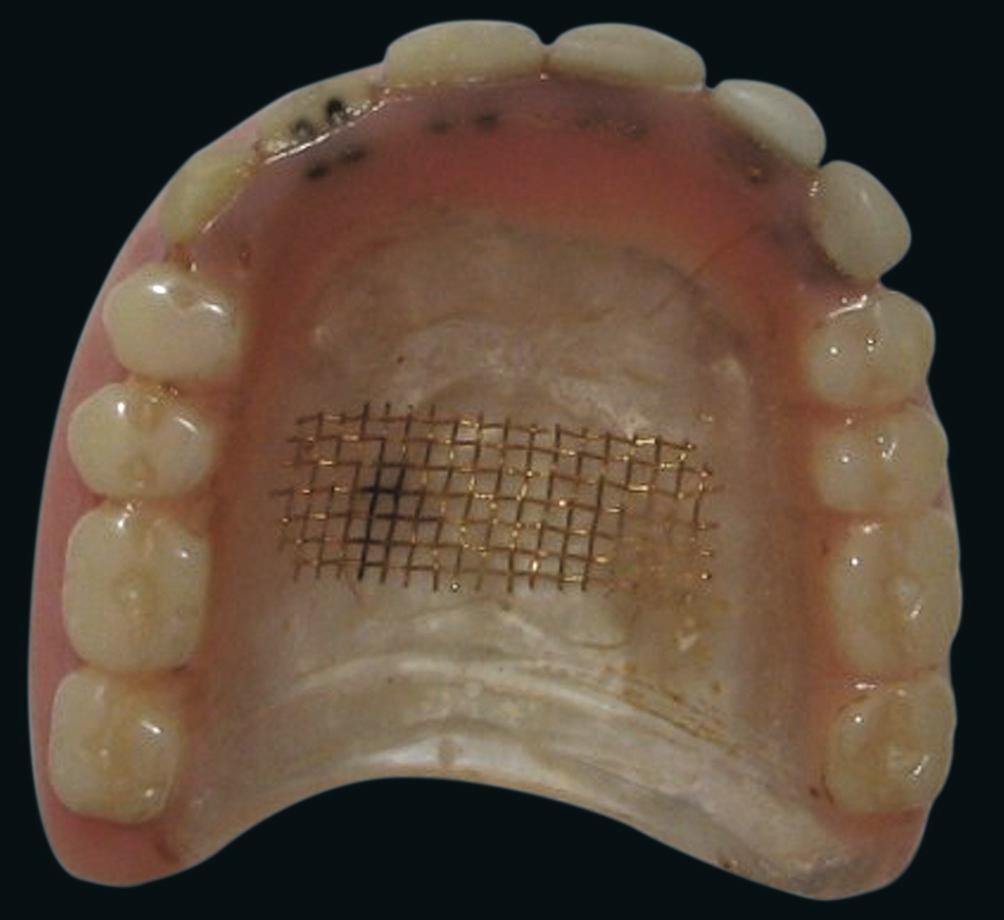 Коррозия арматуры протеза