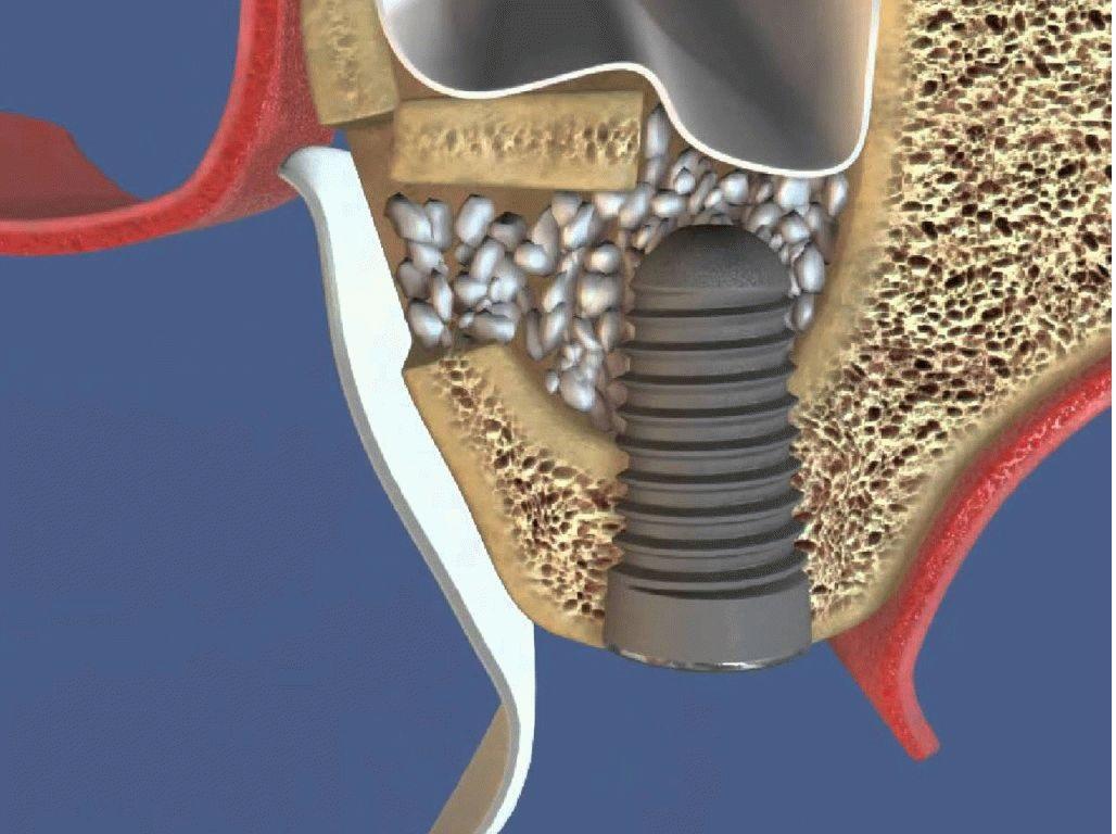 Состояние костной ткани