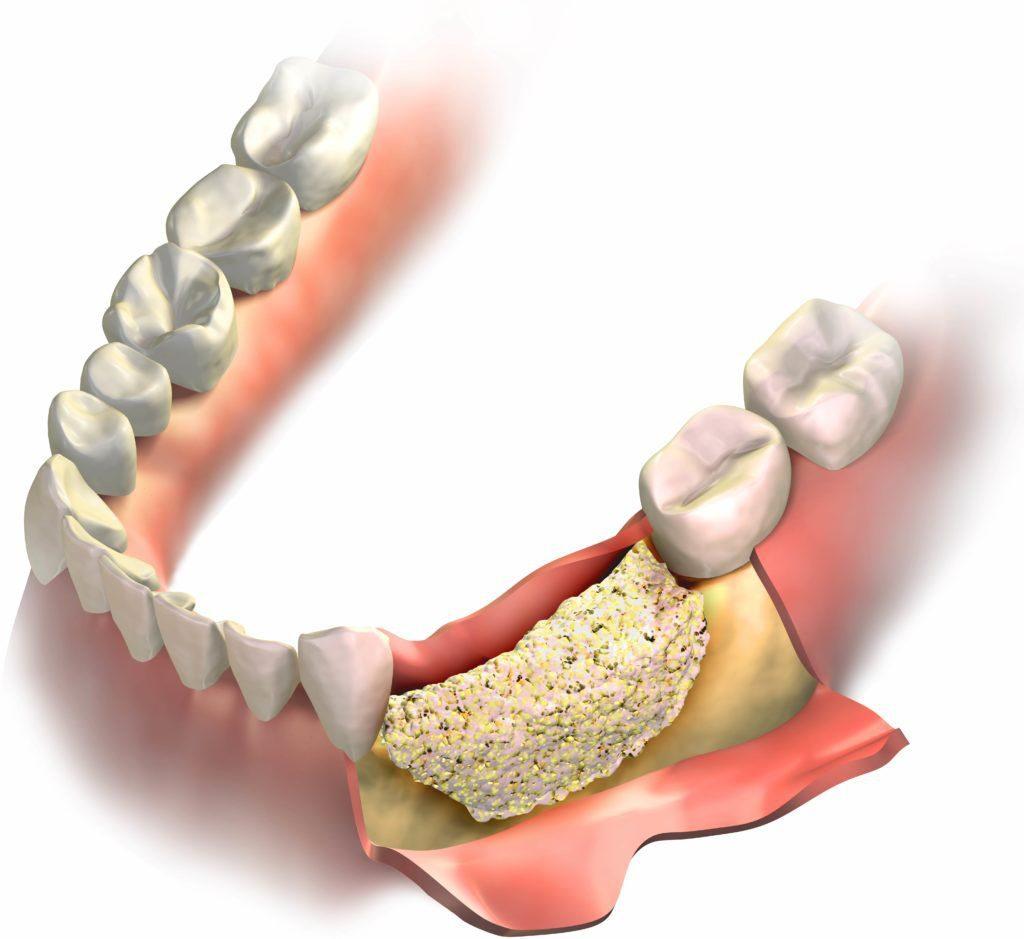 Костная пластика при имплантации зубов