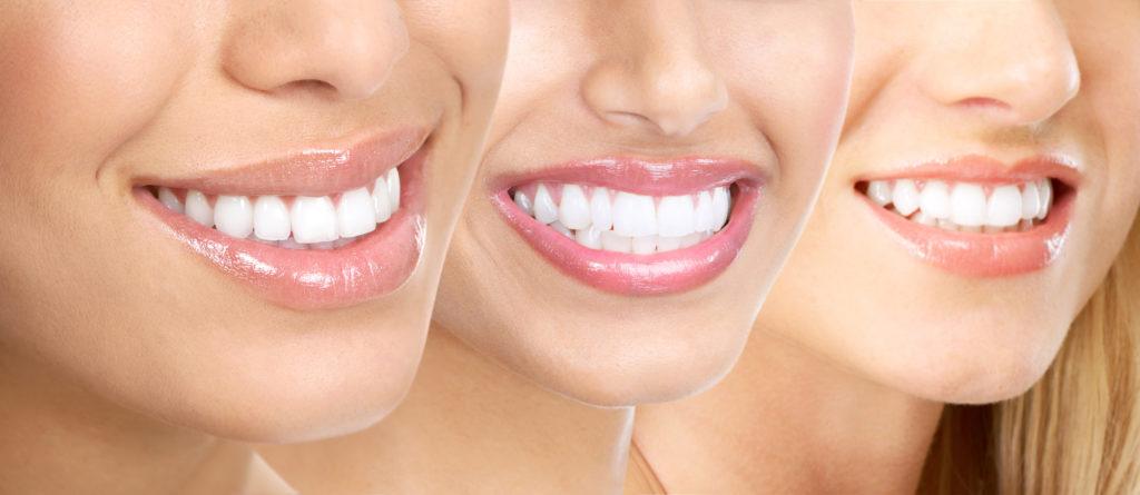 Новый признак социального статуса – это здоровые и красивые зубы