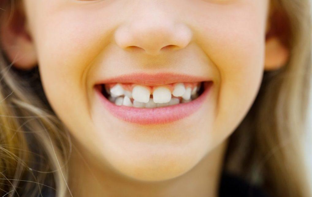 Кривые зубы у детей: причины и способы исправления
