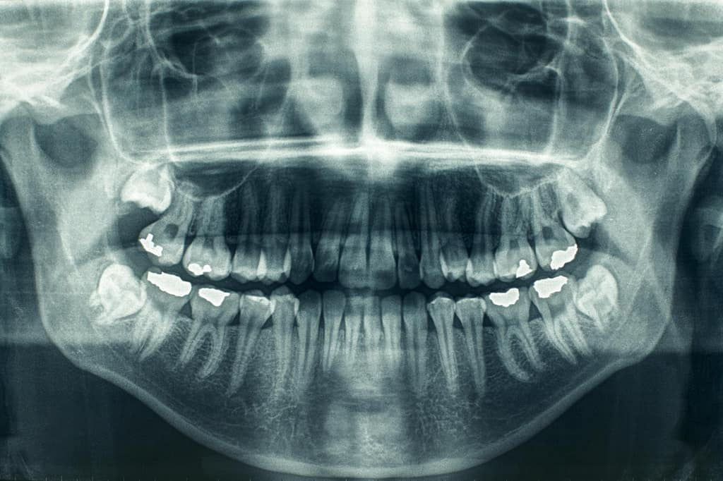 Круговая дентальная рентгенограмма