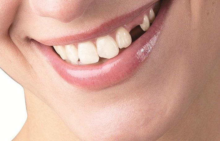 Лечение адентии зубов