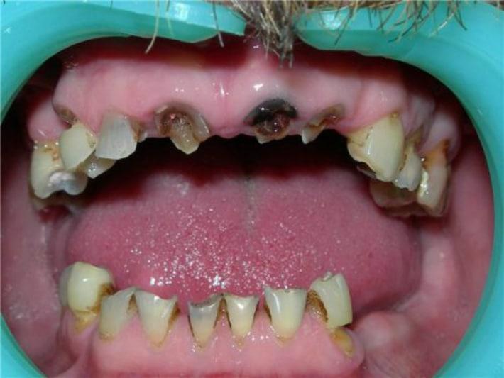 Причина адентии зубов