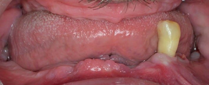 Удаление зубов при адентии