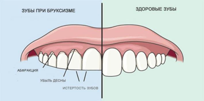Бруксизм и заболевание зубов