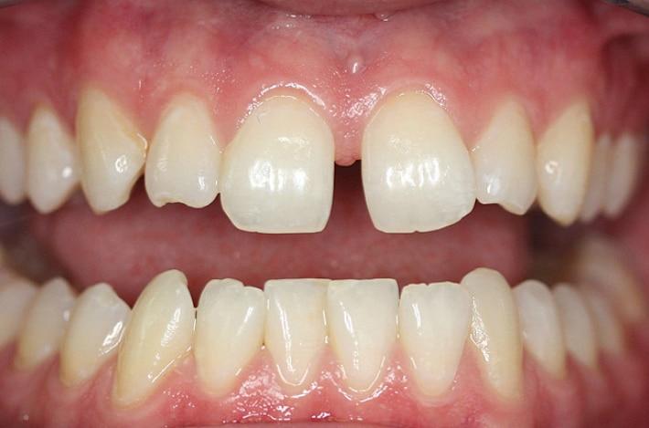 Диастемы передних зубов