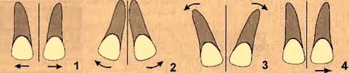 Види диастемы по расположению зубов