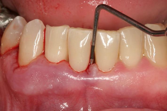Пародонтит передних зубов